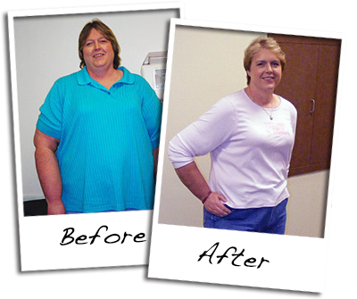 before-and-after-healthy-weight-loss-3.p